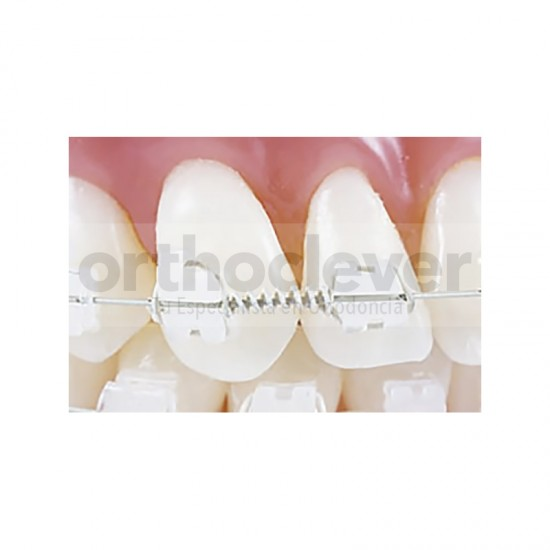 Tooth-Tone-Muelle-NiTi-Abrir